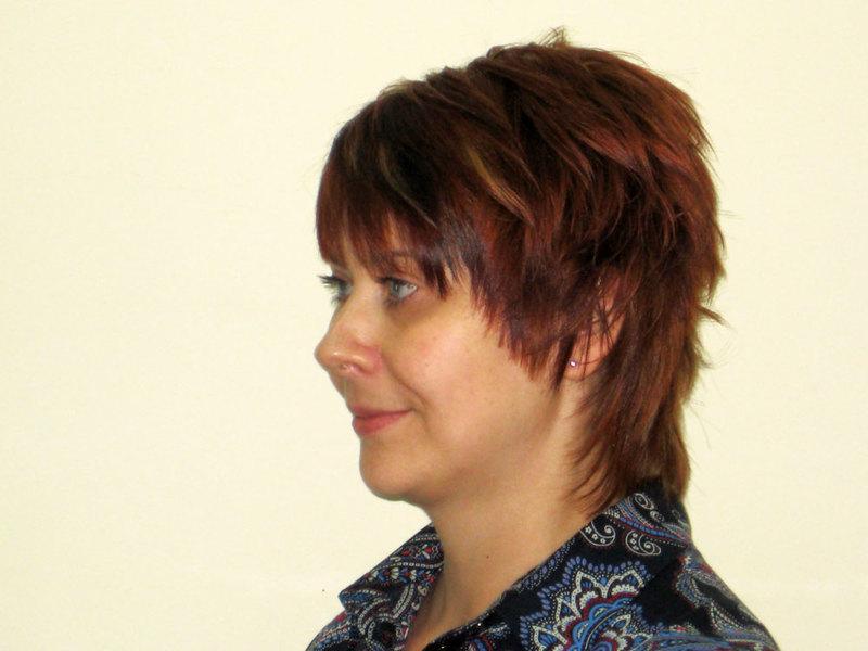 мезотерапия волос показания противопоказания препараты